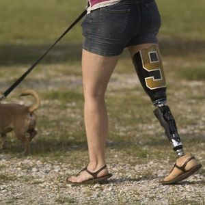 Boston famiy fits runners with prosthetics